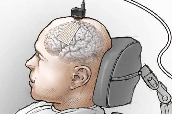 Công nghệ chuyển suy nghĩ thành lời nói, hỗ trợ người mất khả năng giao tiếp